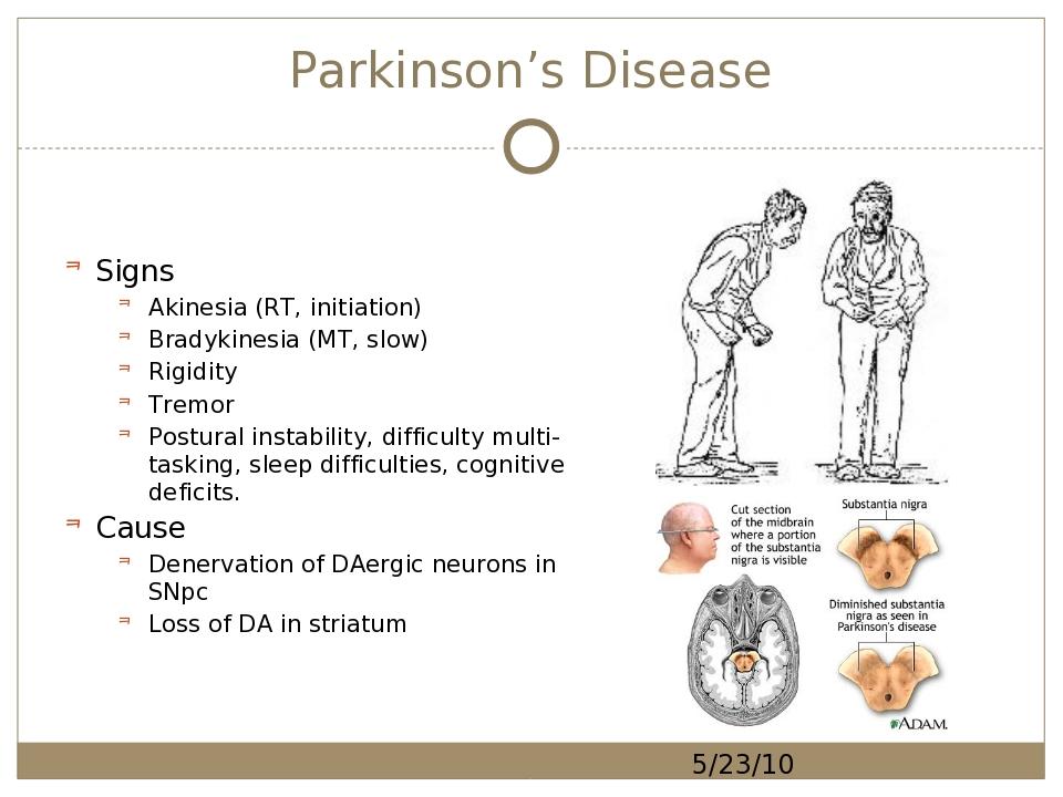 20-CS-110 : Parkinson\'s Disease